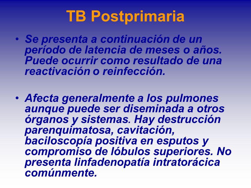 TB Postprimaria Se presenta a continuación de un período de latencia de meses o años. Puede ocurrir como resultado de una reactivación o reinfección.