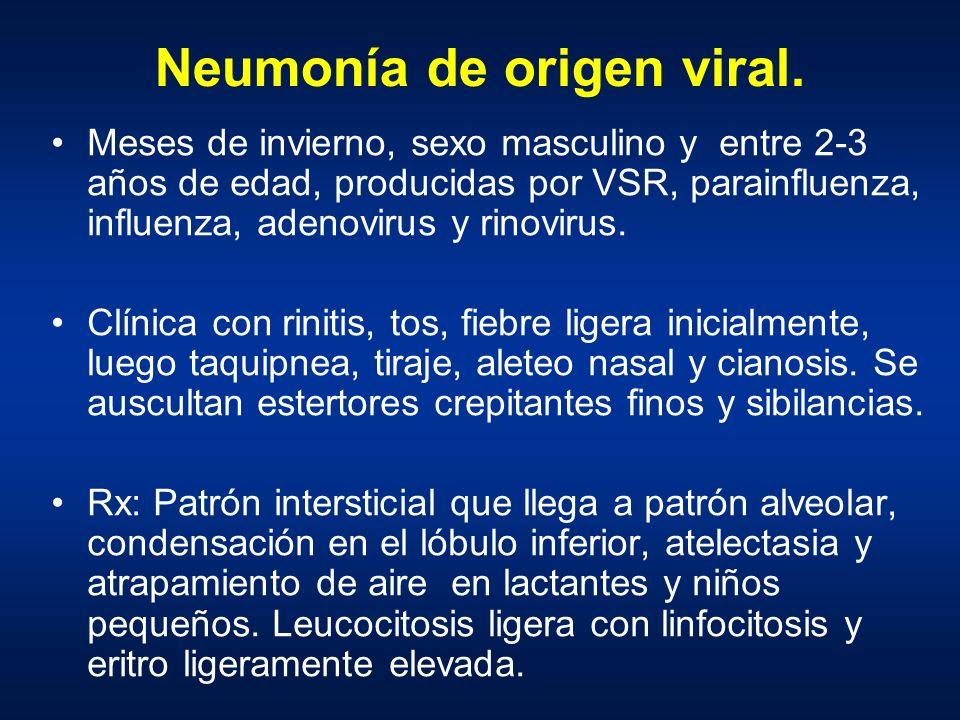 Neumonía de origen viral.