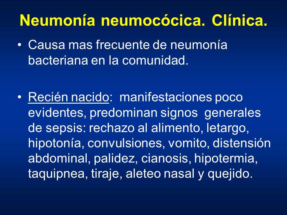 Neumonía neumocócica. Clínica.