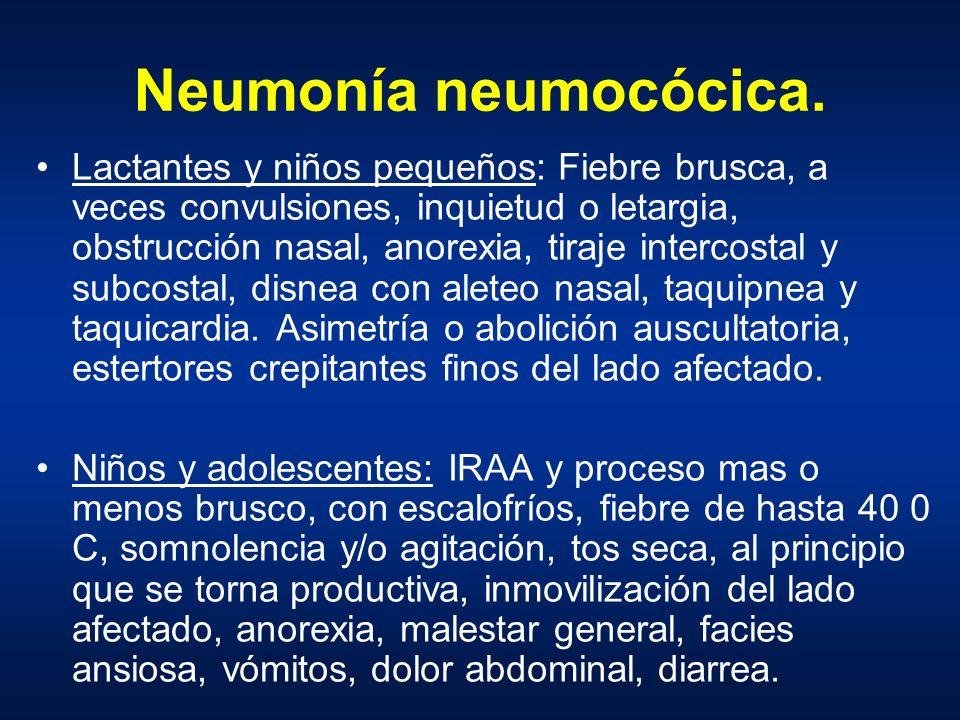 Neumonía neumocócica.