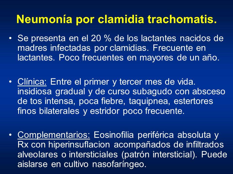 Neumonía por clamidia trachomatis.