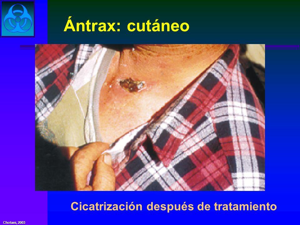 Ántrax: cutáneo Cicatrización después de tratamiento