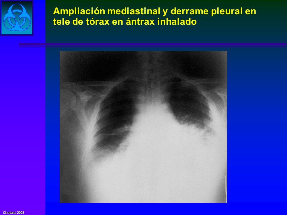 Ampliación mediastinal y derrame pleural en tele de tórax en ántrax inhalado