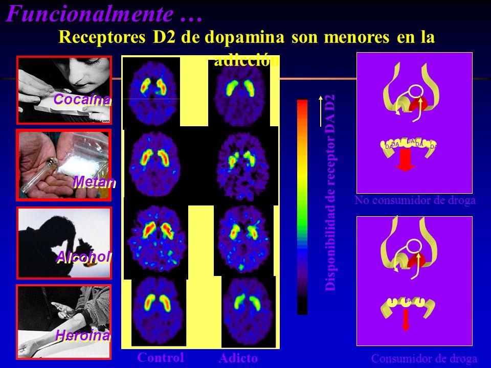 Receptores D2 de dopamina son menores en la adicción