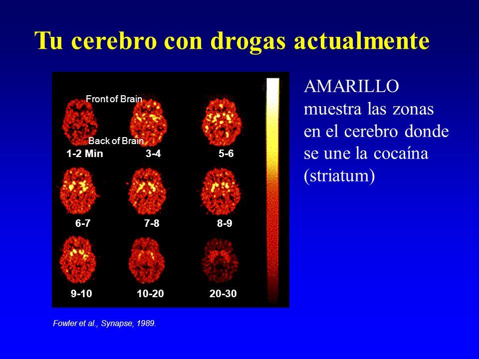 Tu cerebro con drogas actualmente