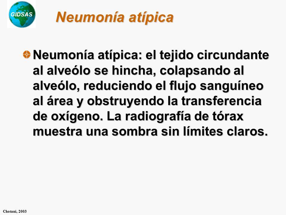 Neumonía atípica