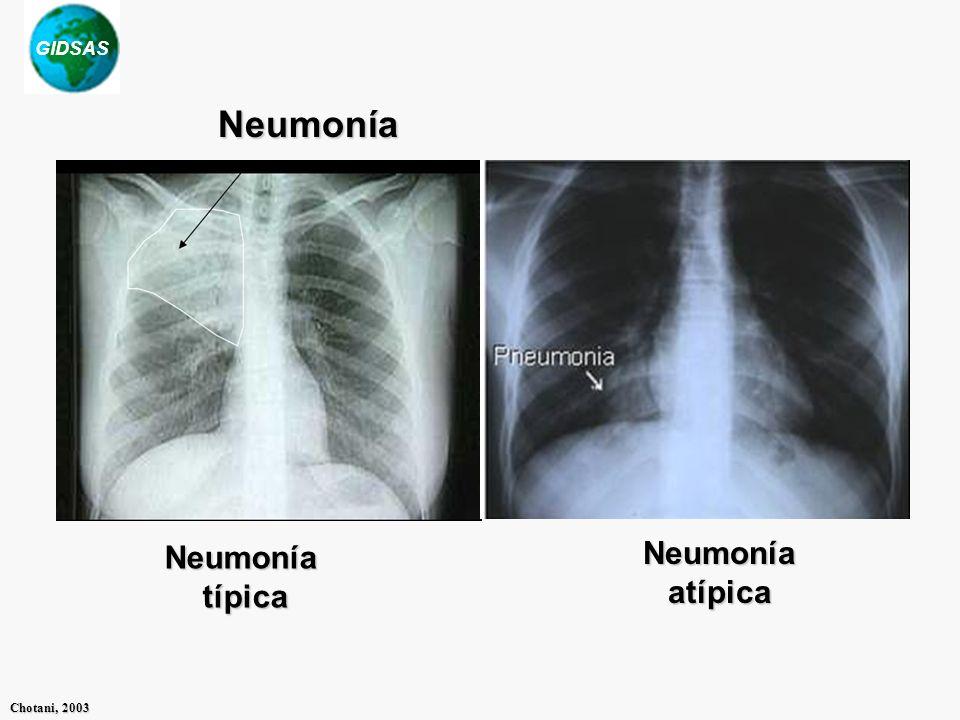 Neumonía Neumonía típica Neumonía atípica