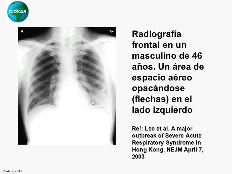 Radiografía frontal en un masculino de 46 años