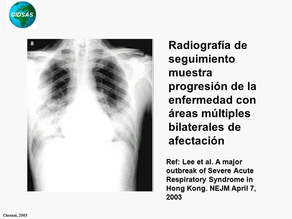Radiografía de seguimiento muestra progresión de la enfermedad con áreas múltiples bilaterales de afectación