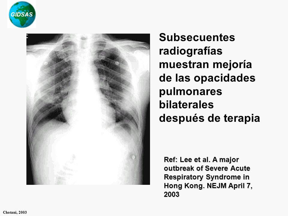 Subsecuentes radiografías muestran mejoría de las opacidades pulmonares bilaterales después de terapia