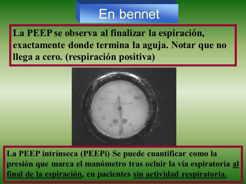 En bennet La PEEP se observa al finalizar la espiración, exactamente donde termina la aguja. Notar que no llega a cero. (respiración positiva)
