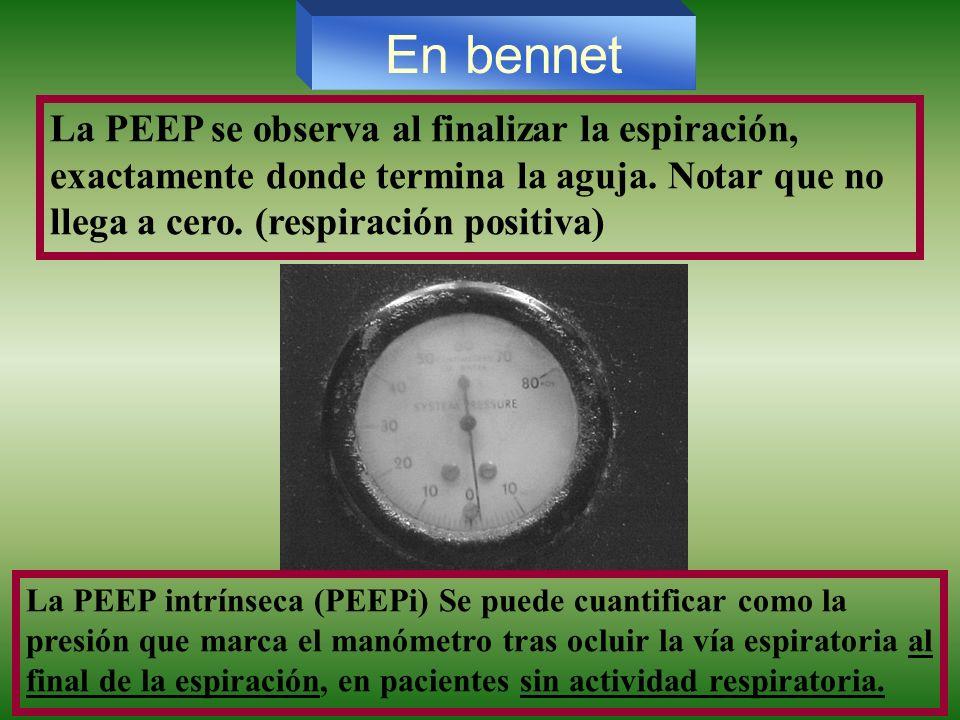 En bennetLa PEEP se observa al finalizar la espiración, exactamente donde termina la aguja. Notar que no llega a cero. (respiración positiva)
