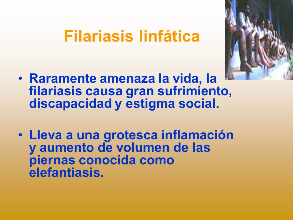 Filariasis linfática Raramente amenaza la vida, la filariasis causa gran sufrimiento, discapacidad y estigma social.