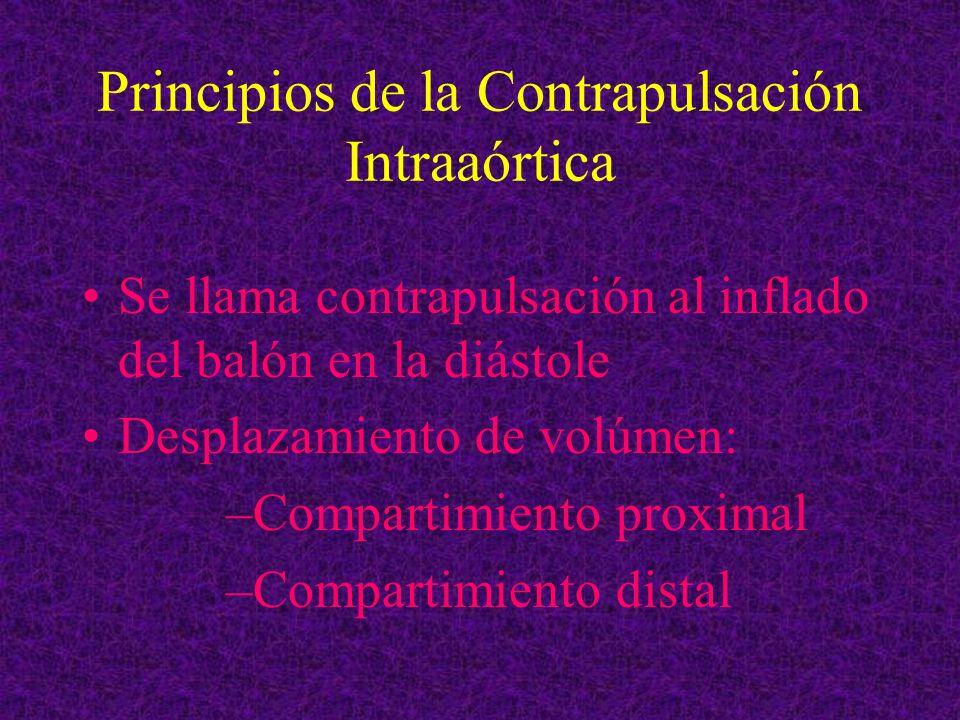 Principios de la Contrapulsación Intraaórtica