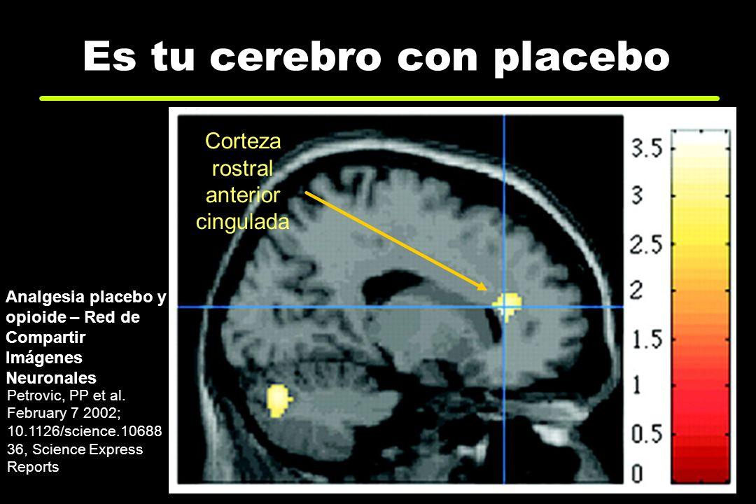 Es tu cerebro con placebo