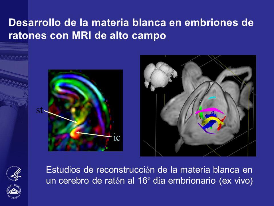 Desarrollo de la materia blanca en embriones de ratones con MRI de alto campo