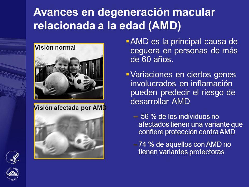 Avances en degeneración macular relacionada a la edad (AMD)