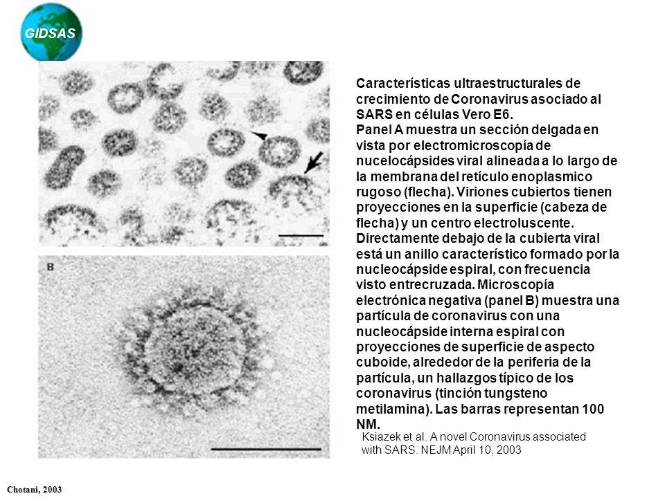 Características ultraestructurales de crecimiento de Coronavirus asociado al SARS en células Vero E6.