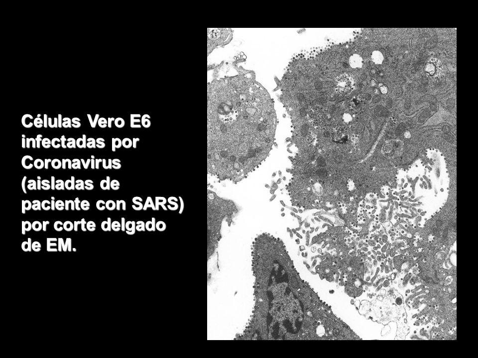 Células Vero E6 infectadas por Coronavirus (aisladas de paciente con SARS) por corte delgado de EM.
