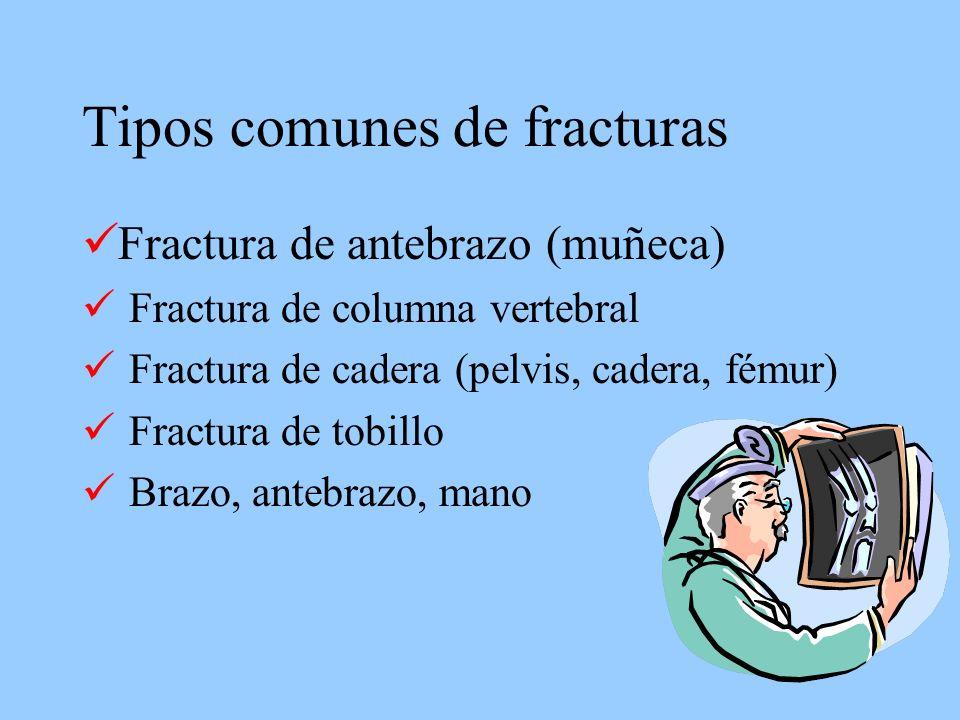 Tipos comunes de fracturas