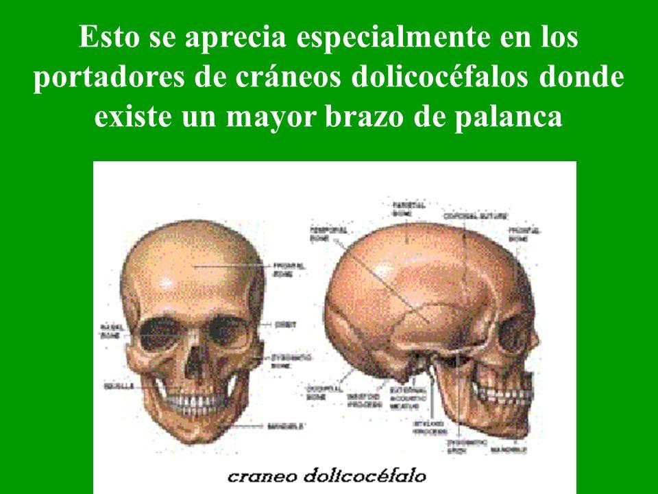 Esto se aprecia especialmente en los portadores de cráneos dolicocéfalos donde existe un mayor brazo de palanca