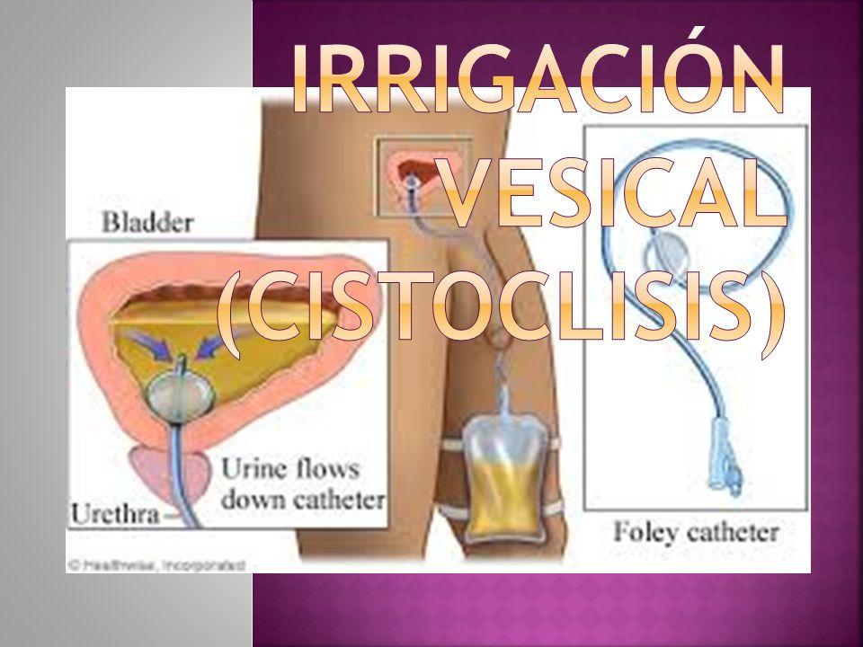 Irrigación vesical (cistoclisis)