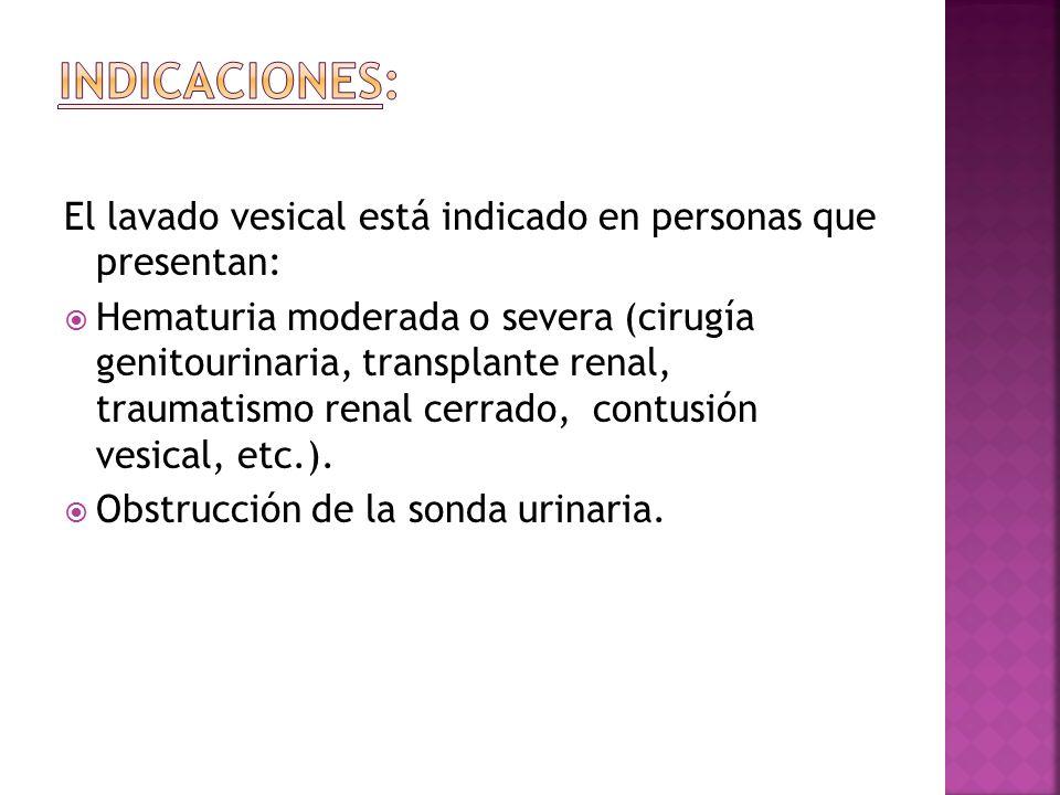 Indicaciones: El lavado vesical está indicado en personas que presentan: