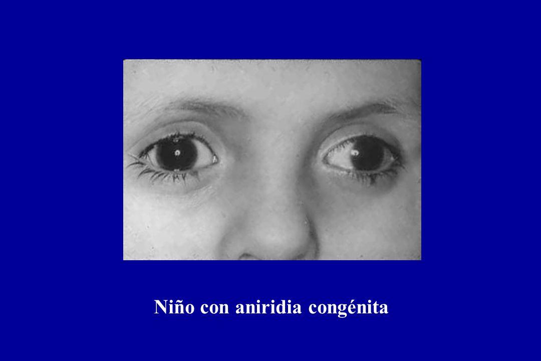 Niño con aniridia congénita
