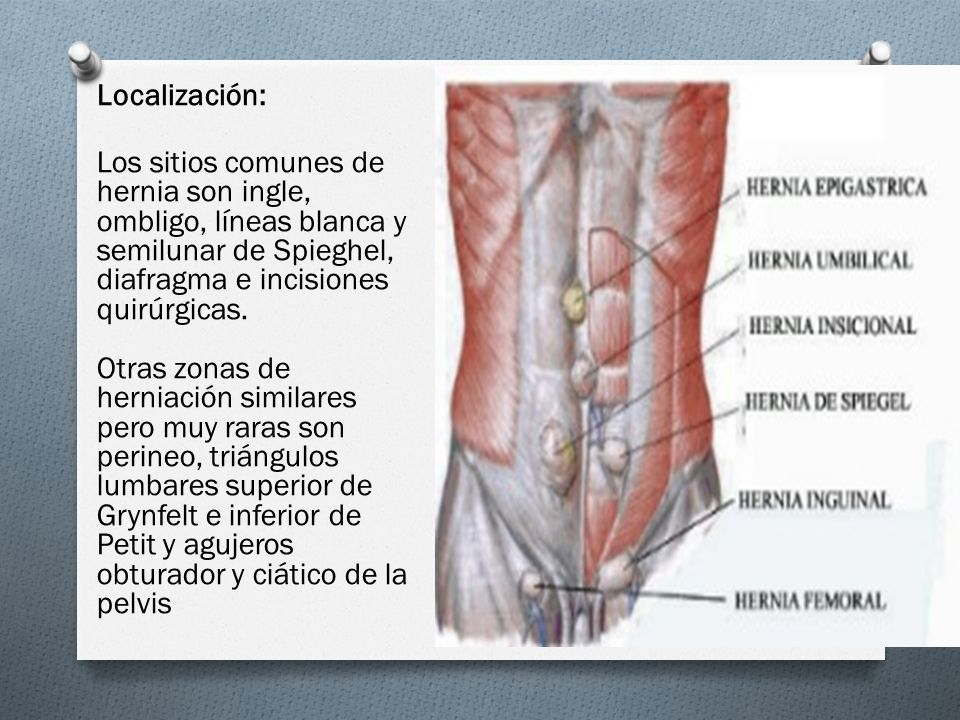 Moderno Anatomía Quirúrgica De La Hernia Inguinal Bandera - Anatomía ...