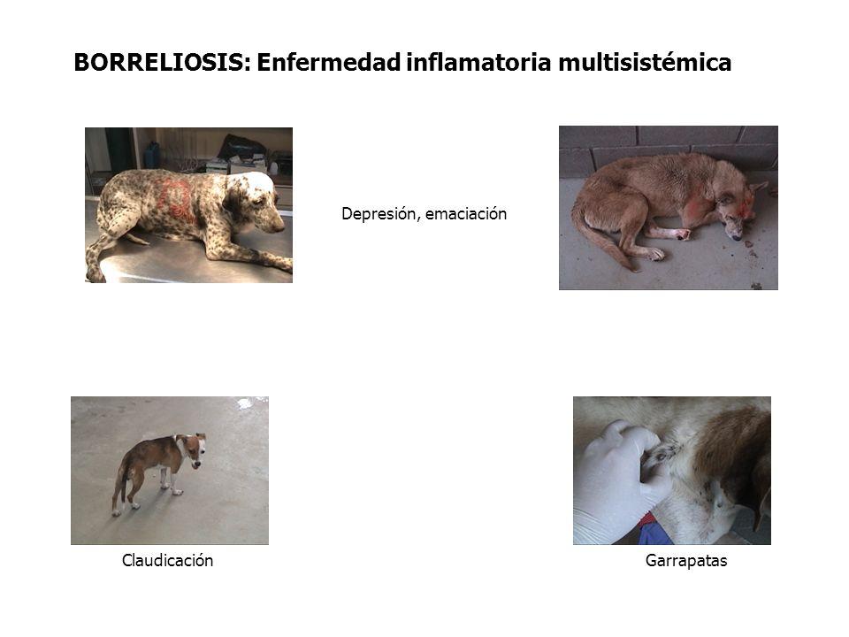 BORRELIOSIS: Enfermedad inflamatoria multisistémica