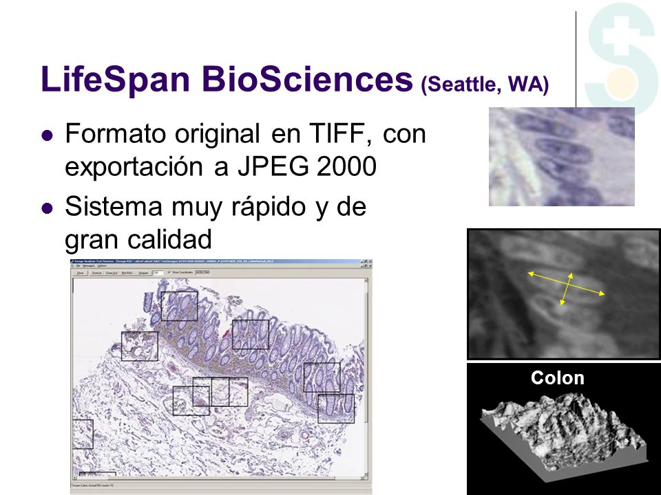 LifeSpan BioSciences (Seattle, WA)