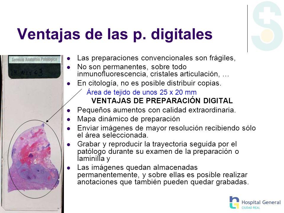 Ventajas de las p. digitales