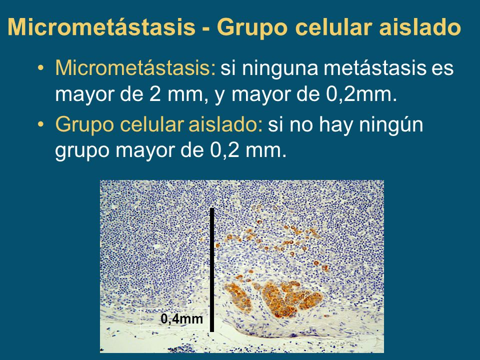 Micrometástasis - Grupo celular aislado