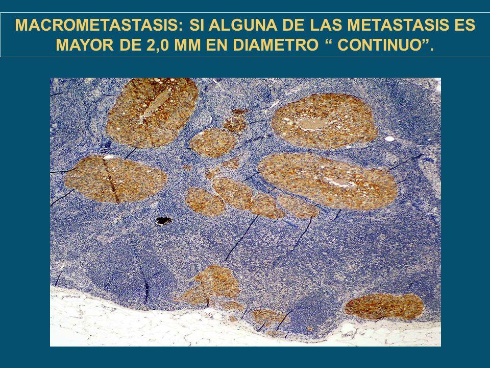 MACROMETASTASIS: SI ALGUNA DE LAS METASTASIS ES MAYOR DE 2,0 MM EN DIAMETRO CONTINUO .