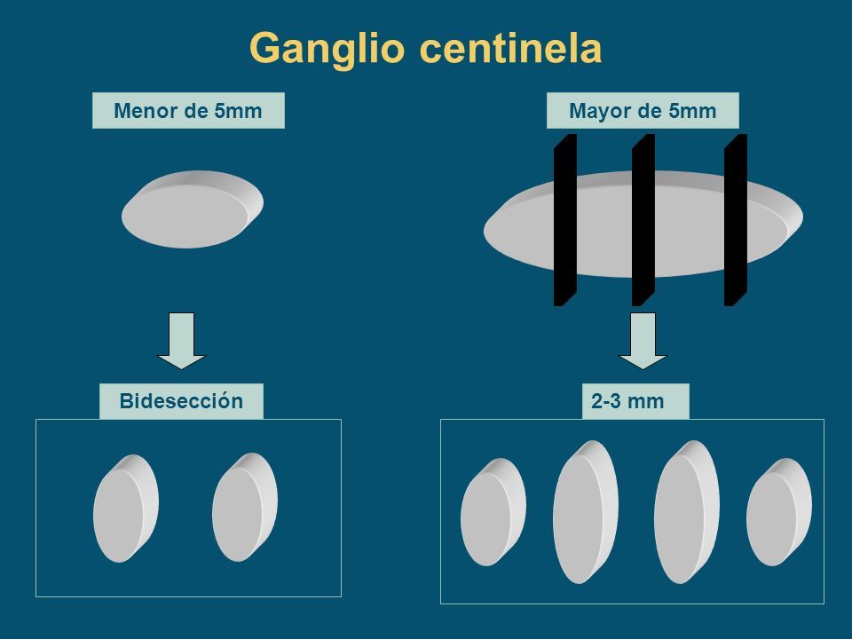 Ganglio centinela Menor de 5mm Mayor de 5mm Bidesección 2-3 mm