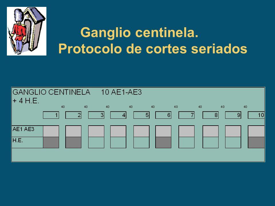 Ganglio centinela. Protocolo de cortes seriados