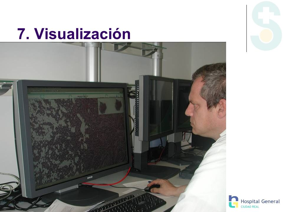 7. Visualización