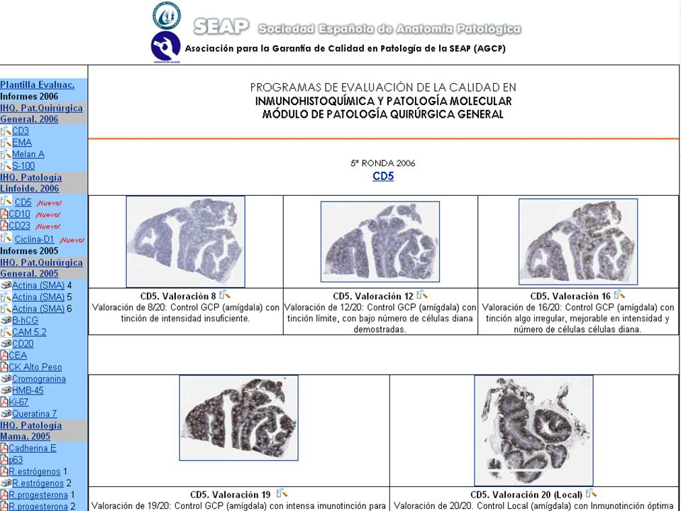 Quality assurance: Spanish Society of Pathology