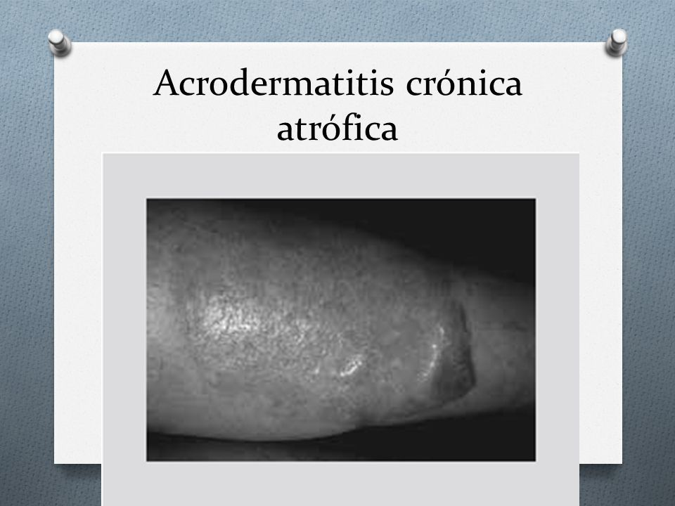 Acrodermatitis crónica atrófica