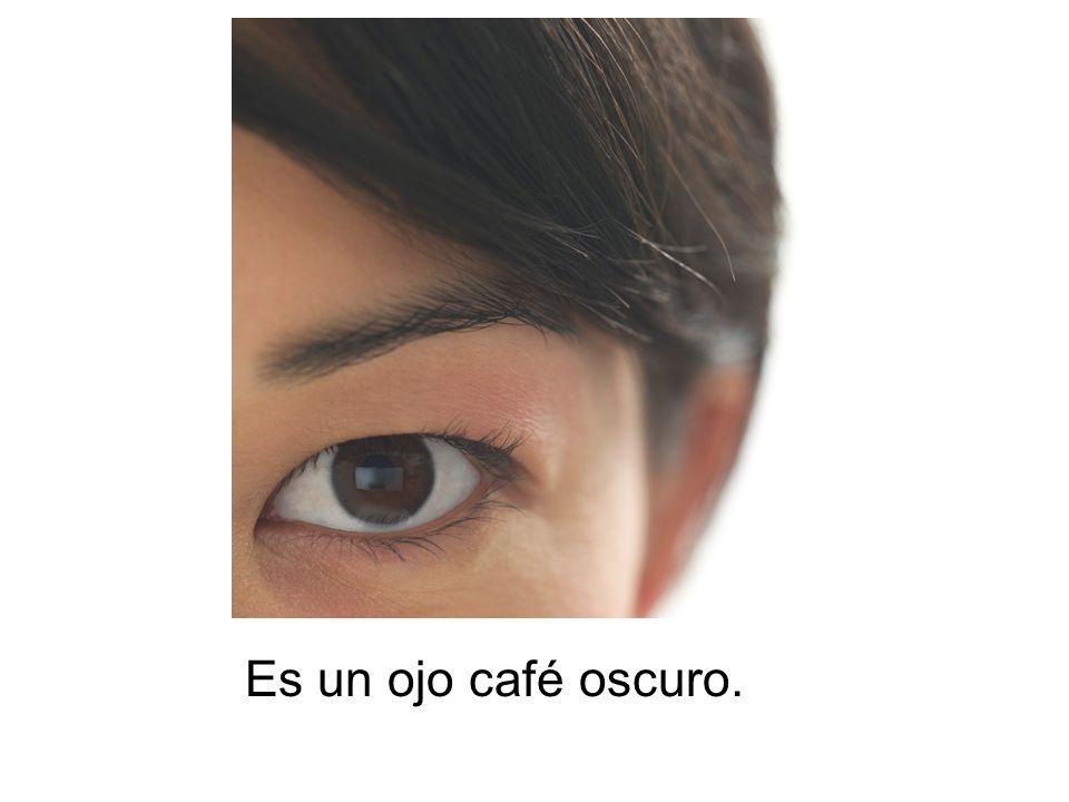 Es un ojo café oscuro.