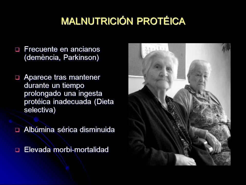 MALNUTRICIÓN PROTÉICA