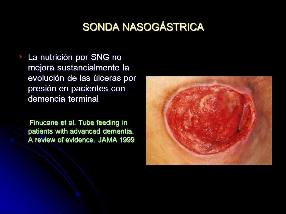 SONDA NASOGÁSTRICALa nutrición por SNG no mejora sustancialmente la evolución de las úlceras por presión en pacientes con demencia terminal.