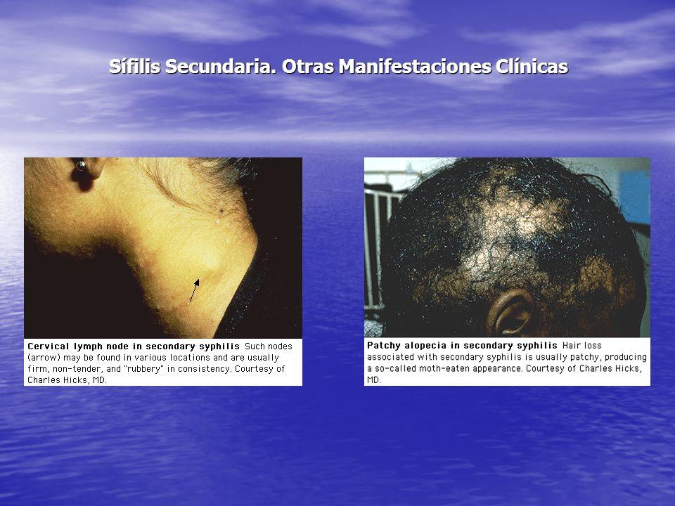 Sífilis Secundaria. Otras Manifestaciones Clínicas
