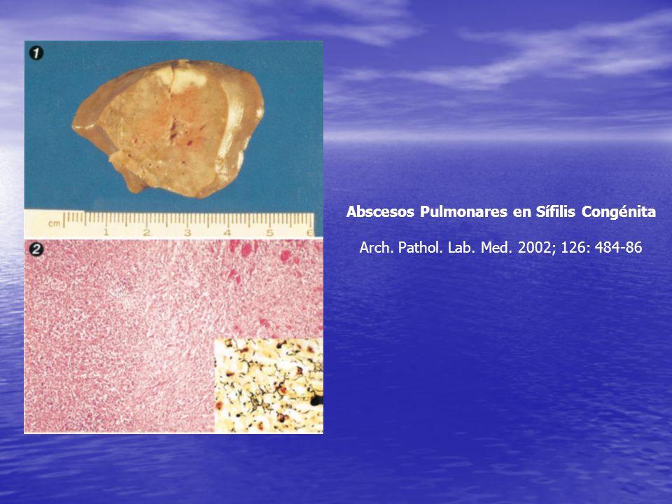 Abscesos Pulmonares en Sífilis Congénita