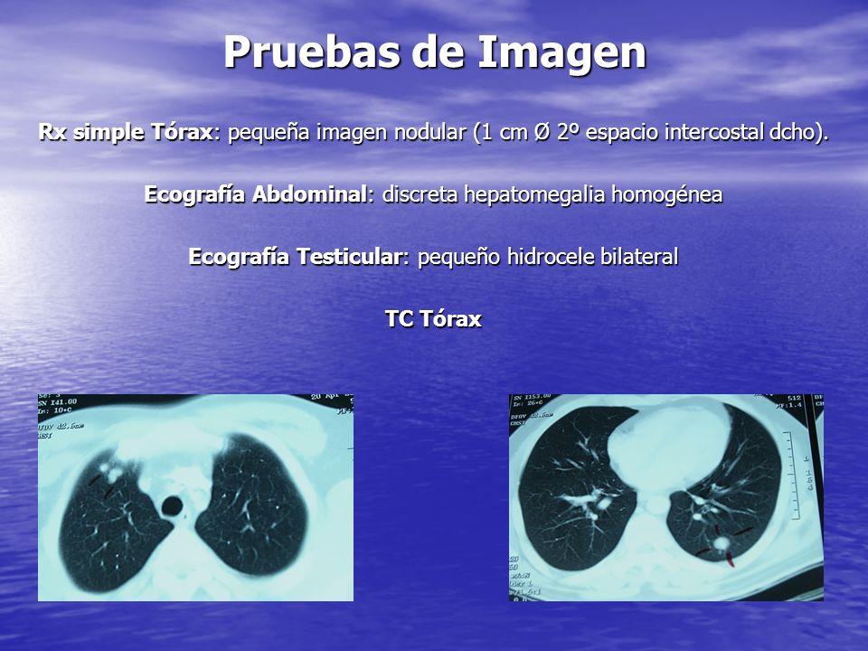 Pruebas de ImagenRx simple Tórax: pequeña imagen nodular (1 cm Ø 2º espacio intercostal dcho). Ecografía Abdominal: discreta hepatomegalia homogénea.