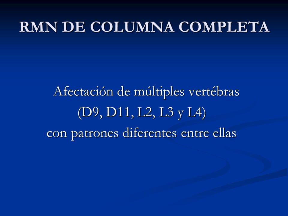 RMN DE COLUMNA COMPLETA