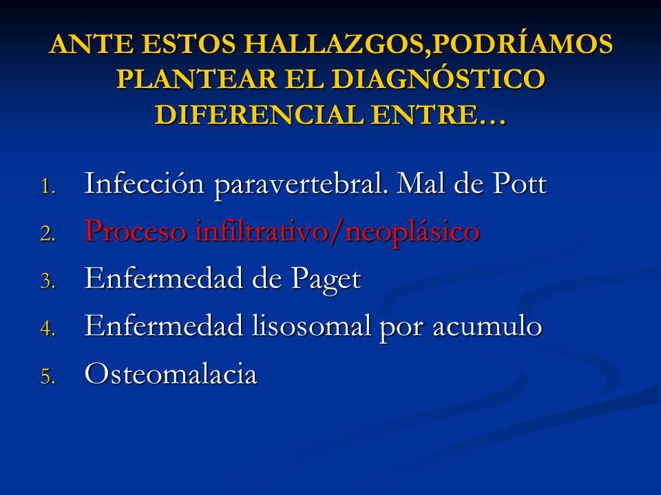 Infección paravertebral. Mal de Pott Proceso infiltrativo/neoplásico