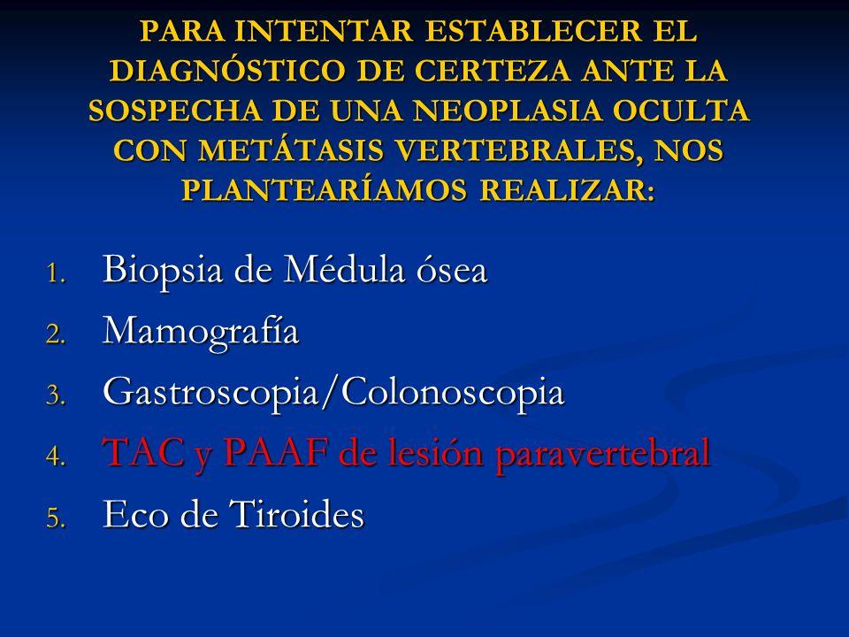 Gastroscopia/Colonoscopia TAC y PAAF de lesión paravertebral
