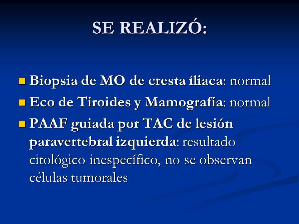 SE REALIZÓ: Biopsia de MO de cresta íliaca: normal
