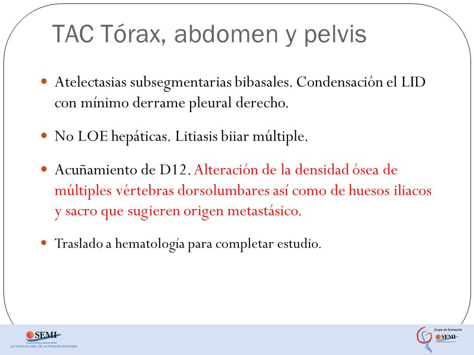 TAC Tórax, abdomen y pelvis